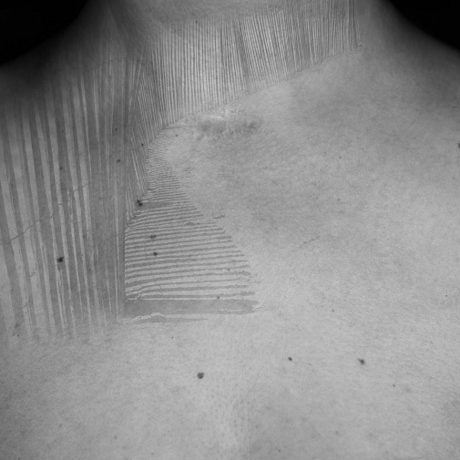 ADHESIONS AND INDELIBLE SIGNS